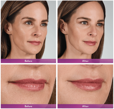 Volbella Lips