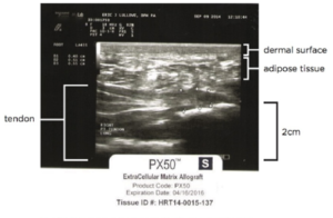 PTM Therapy Tendon